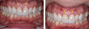 Фото до и после лечения десен