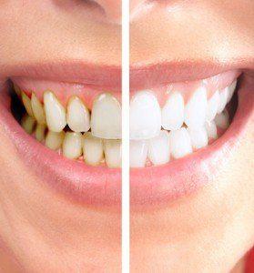 Фото до после проф гигиены зубов