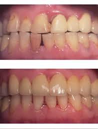 Фото до и после лечения парадонтоза