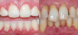 Фото до и после лечения пародонтита