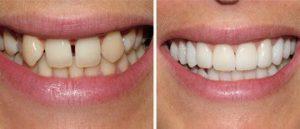 Фото до и после реставрации зубов
