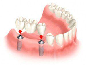 Схема установки зубного протеза