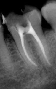 Рентген снимок больного пульпитом зуба