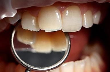 Повреждения зубной эмали: как предупредить беду?