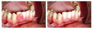 Фото до и после удаления экзостозов