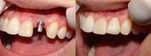 Фото до и после установки имплнатов