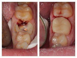 Фото до и после удаления корня