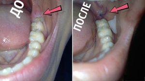 Фото до и после удаления зуба мудрости