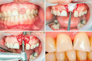 Фото до и после костной пластики