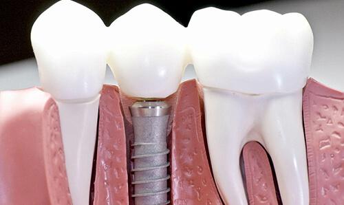 Зачем необходима костная пластика?