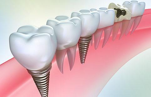 Зубные имплантаты: показания и технологии будующего