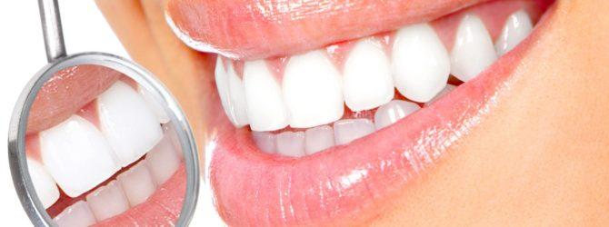 Идеальная улыбка с точки зрения стоматологии