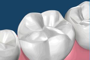 Новый материал в стоматологии