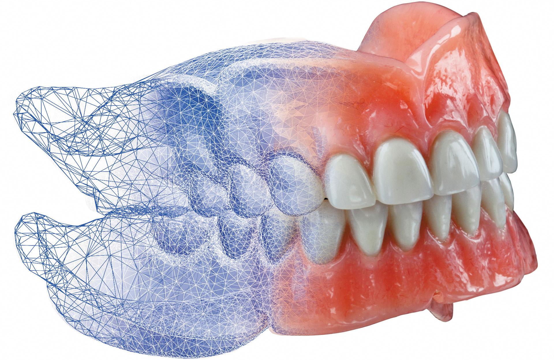 Технология CAD/CAM или компьютерное протезирование: новый виток в истории стоматологии