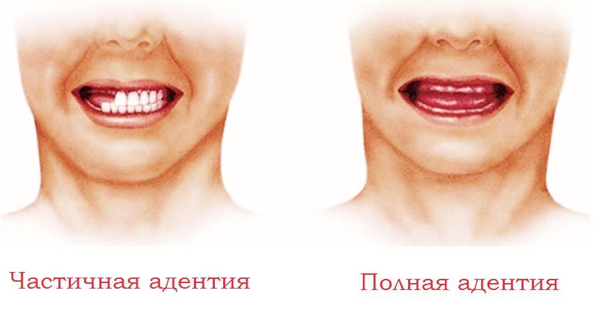 Адентия или отсутствие зубов: можно ли вылечить?