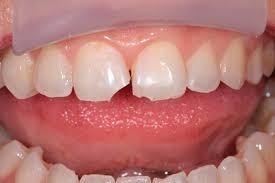 Восстановление скола зуба