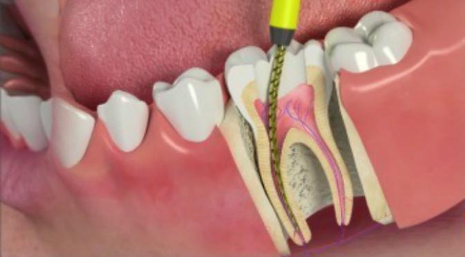 Лечение каналов зуба по недорогой цене