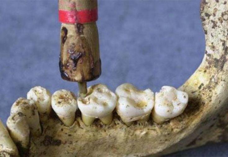 Древняя стоматология или как лечили зубы в Европе и на Востоке