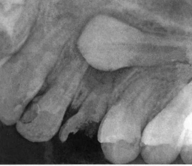 Аномалии зубного ряда: необычные случаи