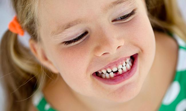 Кривой зуб – не приговор! Что можно сделать?