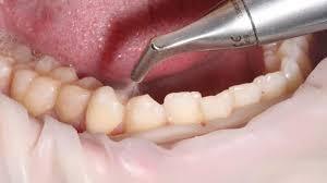Чистка зубов ультразвуком: плюсы и минусы