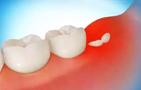 Как понять, что растет зуб мудрости?