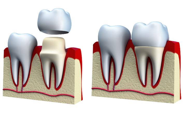 Коронки на зубы: популярные мифы