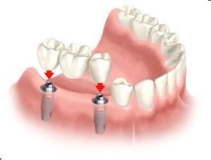Мостовидные протезы зубов: особенности и преимущества