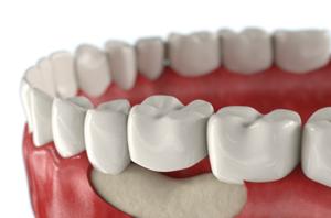 Зачем нужно наращивание костной ткани зуба?