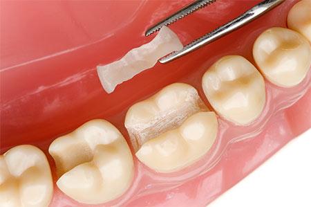 Зубные вкладки: показания, преимущества и недостатки
