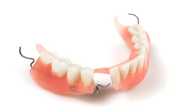 Частичное протезирование зубов и современные возможности