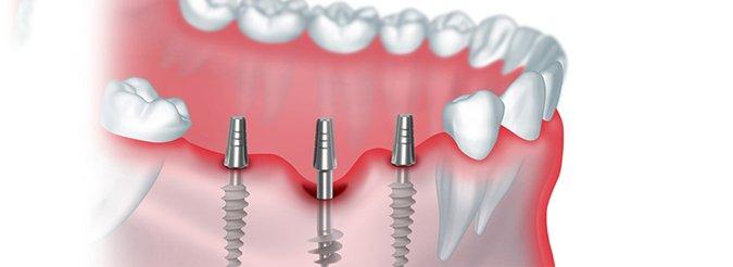 Что лучше – восстановление зуба на штифте или имплантация?