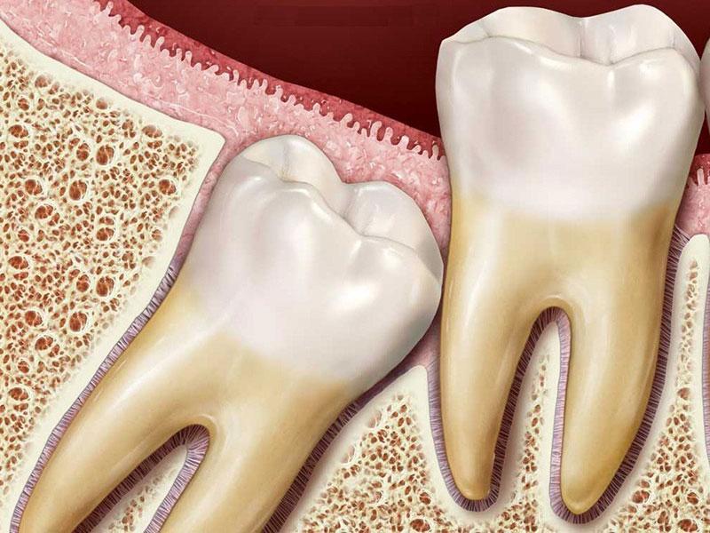 Стоит ли удалять зубы мудрости?