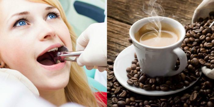 Топ-7 продуктов от которых ваши зубы желтеют
