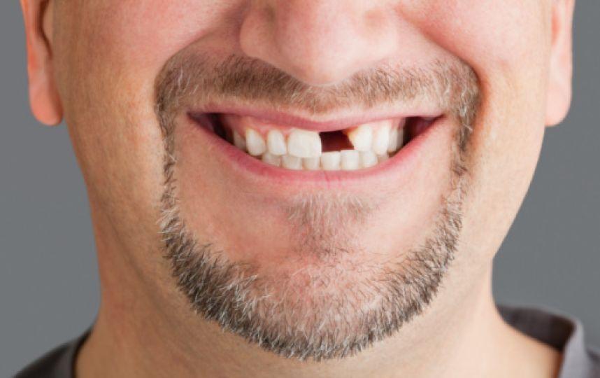 Сломался зуб: реставрировать или удалять?