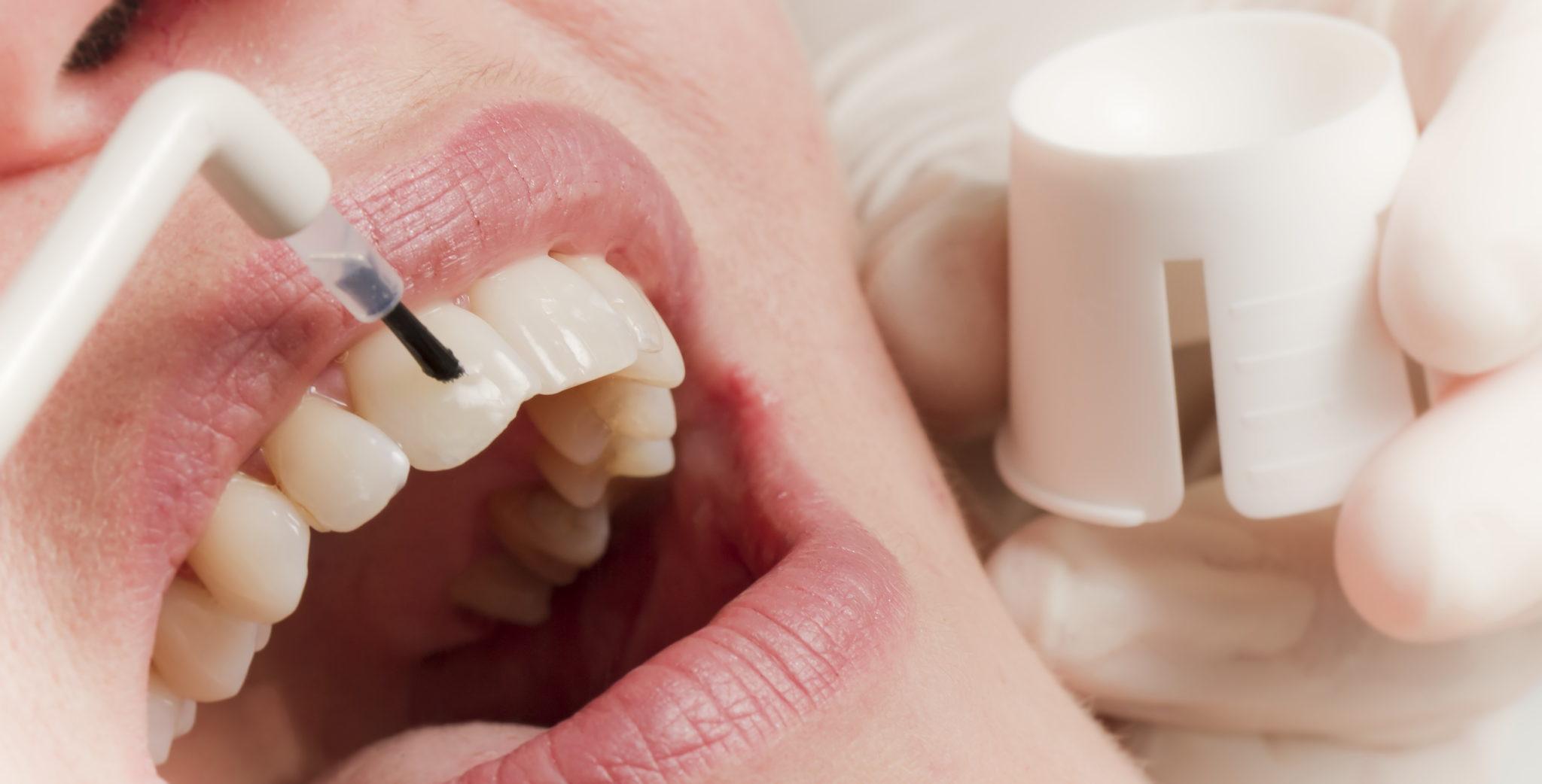 Фторирование зубов: что это и зачем?
