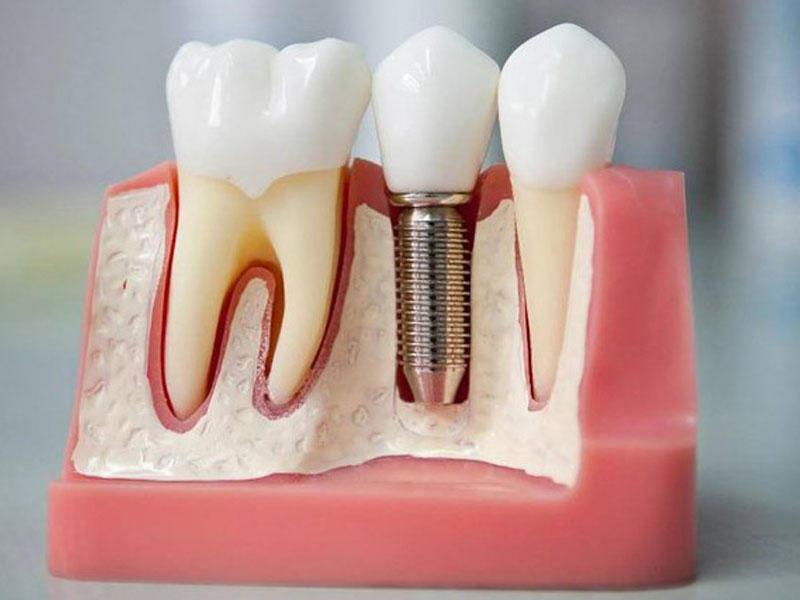 Протезирование или имплантация зубов: что лучше подойдёт вам?