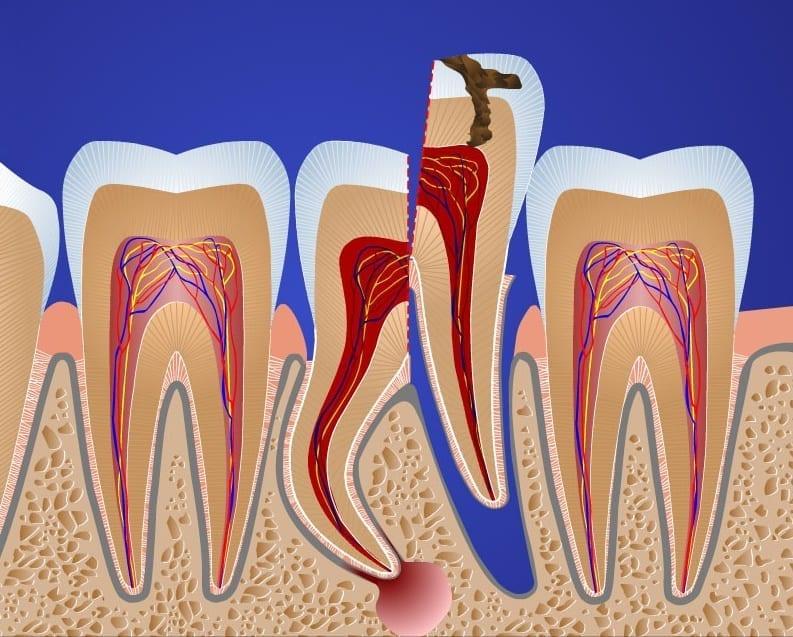 Почему может болеть корень зуба?
