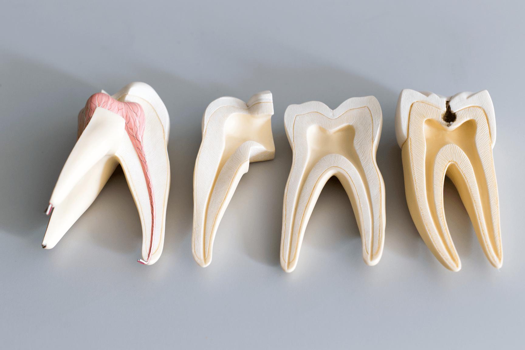 Когда придется удалять корни зубов?