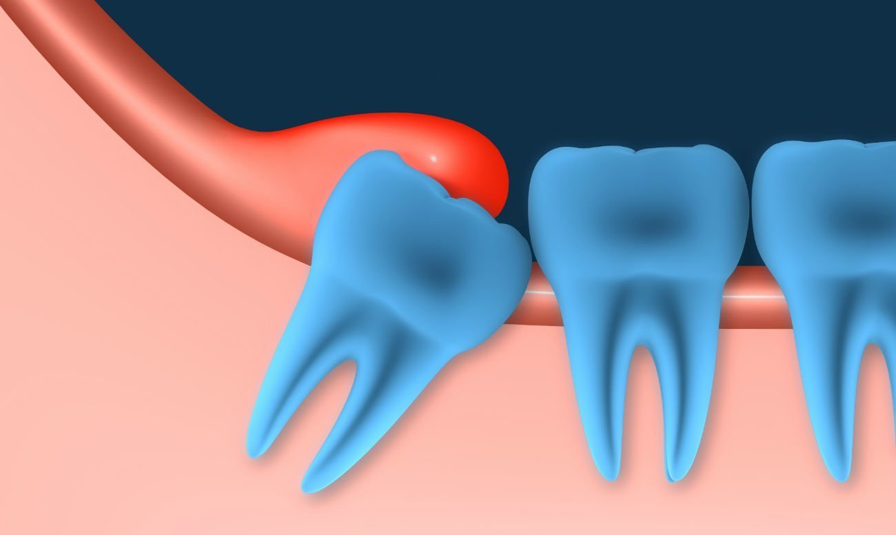 Как удаляют капюшон зуба мудрости?